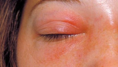 Illustration of The Skin Area Under The Eyes Is Reddish After The Placement Of The Tape During Eyelash?