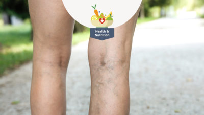Illustration of How To Treat Varicose Veins After Giving Birth By Caesarean Section?