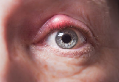 Illustration of The Eye Does Not Heal After Being Given Medicine For Several Days?