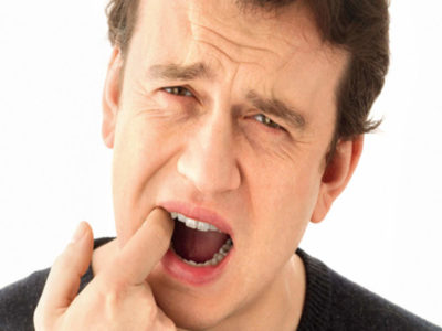 Illustration of Rules For Consuming Drugs After Canker Sores Have Healed?