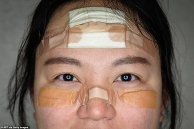 Illustration of Can You Use Eye Patches On The Bruise Scar?