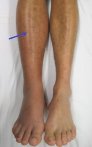 Illustration of How To Launch Blood Clot In The Legs Due To An Accident?