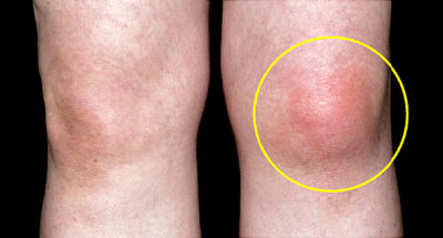Illustration of Legs Until The Face Is Swollen In Gout Sufferers?