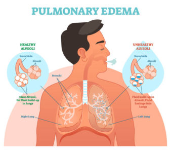 Illustration of Does It Suffer From Coughing Or Heart Swelling?