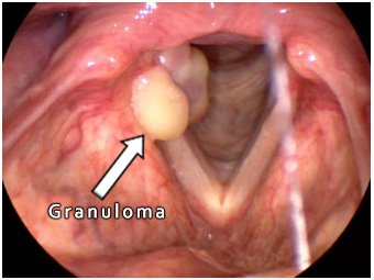 Illustration of Granuloma Symptoms And Tooth Discomfort?