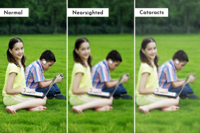 Illustration of Causes Blurred Vision Of One Point?