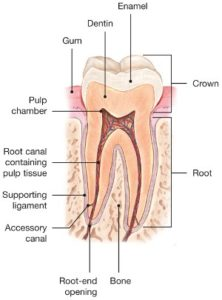 Illustration of The Process Of Killing A Tooth Root Nerve In The PSA Procedure?