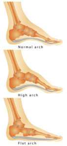 Illustration of Back Pain When The Foot Is Flat?