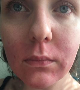 Illustration of Red Skin After Using Face Cream?