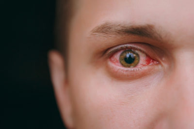 Illustration of Blurred Vision After Using Drugs To Treat Herpes In The Eye?