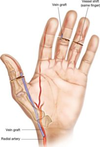 Illustration of The Index Finger Graft Has Not Dried Yet?