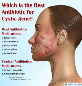 Illustration of Treatment For Cystic Acne?