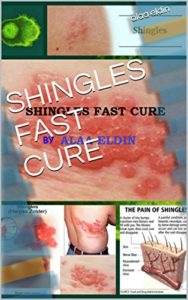 Illustration of Solution To Overcome Shingles Quickly?
