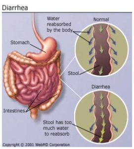 Illustration of How To Deal With Diarrhea For A Month?