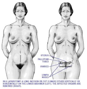 Illustration of Pregnant After Laparotomy Surgery?