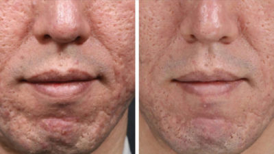 Illustration of Dermapen Treatment When There Are Pimples?