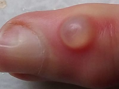 Illustration of Spots Resemble The Finger After Experiencing Runny Bubbles In The Top Segment Of The Finger?