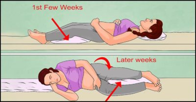 Illustration of How To Sleep Properly When Pregnant 7 Weeks?