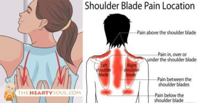 Illustration of The Cause Of The Shoulder Blades Is Shocked?