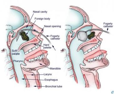 Illustration of Foreign Objects That Enter The Nose?