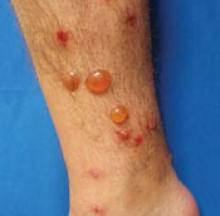 Illustration of The Skin Of The Lower Leg Blisters Red After 2 Days Of Heat?