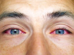 Illustration of Can Red Eyes Cause Farsightedness?