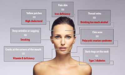 Illustration of Can You Use A Facial Iron When Having Acne?