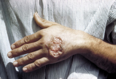 Illustration of Sores Due To Leprosy Insect Bites That Only Attack In Children Aged 1 Year?