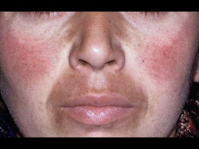 Illustration of Side Effects Of Whitening Creams?