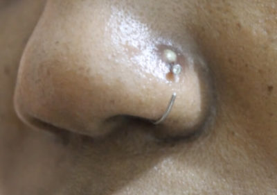 Illustration of Purging And Bleeding Bumps Appear In The Pierced Hole?