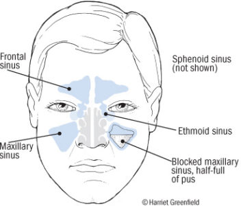 Illustration of The Nose Aches And Spreads To The Eyes And Forehead While In The Air Conditioned Room?