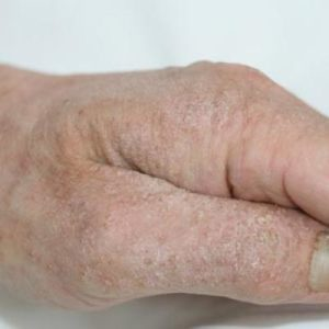 Illustration of Handling For Scabies That Has Been Chronic And Never Healed?