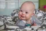 The Characteristics Of Down Syndrome In Infants Aged 2 Months?