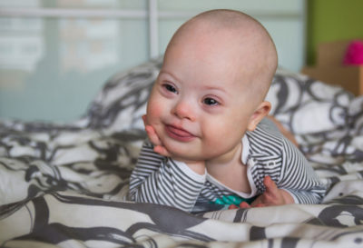 Illustration of The Characteristics Of Down Syndrome In Infants Aged 2 Months?