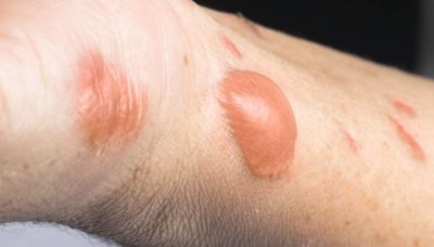 Illustration of Can Oil Be Used To Treat Blisters Caused By Motorcycle Accidents?