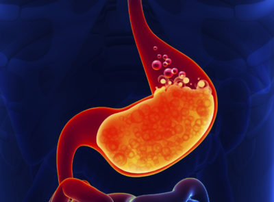 Illustration of Overcoming Prolonged Heartburn In Patients With Ulcers?