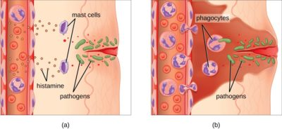 Illustration of Overcoming Liquid Chapter That Never Heals When Suffering From Inflammation Of The Small Intestine?