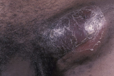 Illustration of Swollen Penis After Intercourse When A Partner Is Menstruating?