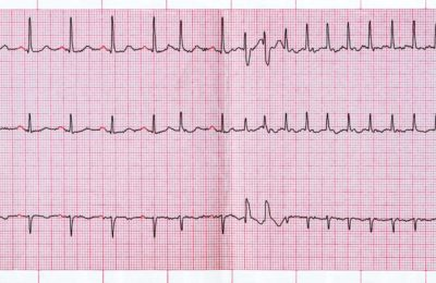 Illustration of Heart Palpitations Accompanied By Pain In The Middle Of The Chest?