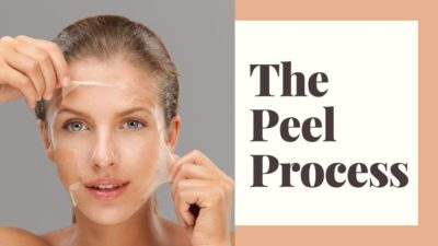 Illustration of Small Pimples That Multiply After The Peeling Treatment Process, Is It Normal?