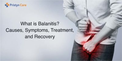 Illustration of How Do You Deal With Balanitis?