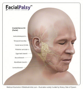 Illustration of Can Paralysis On The Face Of The Left Side That Has Been Chronic Can Be Cured?