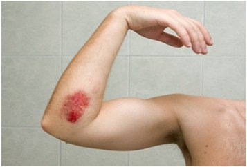 Illustration of Proper Wound Care For Swollen And Festering Wounds?