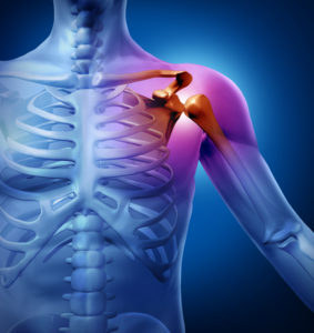 Illustration of Is It A Danger That A Shoulder Blade Fracture Is Not Operated On?