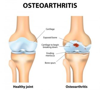 Illustration of Causes And Overcome Joint Pain In The Elderly When Sitting?