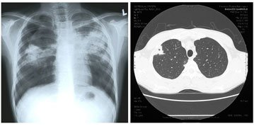 Illustration of How To Clean The Lungs From Spots Of Tuberculosis?