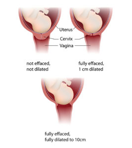 Illustration of What Are The Conditions For A Normal Delivery After A Cesarean Delivery?