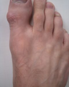 Illustration of A Hard Lump Like Bone On The Big Toe That Feels Painful To The Touch?