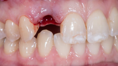 Illustration of Milk Teeth Are Still Intact And Do Not Come Off At The Age Of 19 Years?