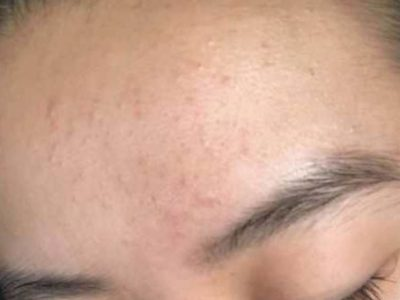 Illustration of How To Deal With Fungal Acne Form And How To Treat It?